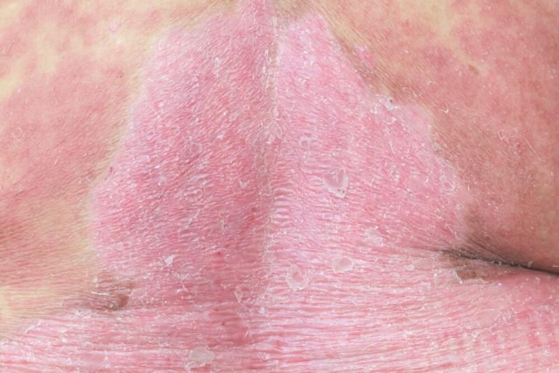 Probiotics skin conditions