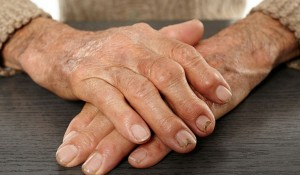 Researchers Link Rheumatoid Arthritis To Gut Bacteria